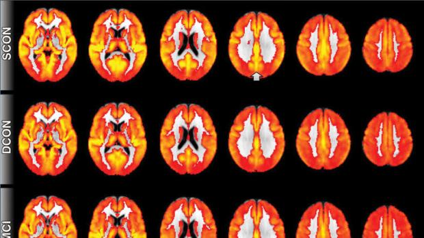 MRI scans show perfusion -- the penetration of blood into brain tissue -- which declined in patients who went on to develop cognitive deficits. (Radiological Society of North America)